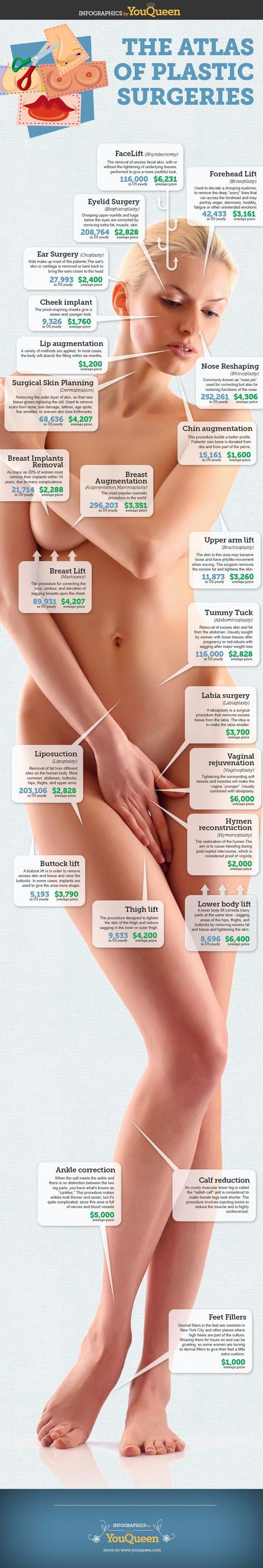 The Atlas of Plastic Surgeries (INFOGRAPHIC). Wow, I didn't know for all of these. Amazing! #PlasticSurgeries #Infographic