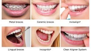 Invisalign Clear Teeth Aligners Guidelign Clear Aligners Different Types Of Braces Dental Braces Orthodontics