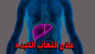 ما هو التهاب الكبد A بحسب منظمة الصحة العالمية فإن الالتهاب الكبدي A مرض فيروسي يصيب الكبد ويمكن أن يسبب أعراضا مرضية ت Blog Posts Blog Fictional Characters