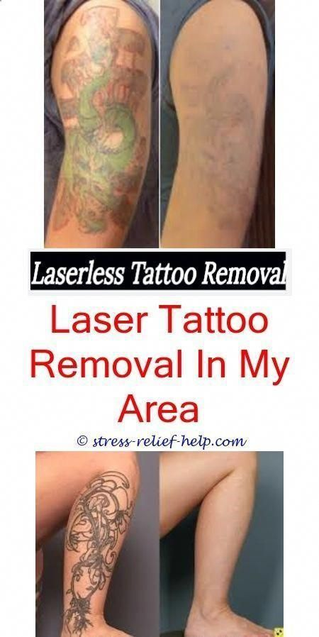 Laser Tattoo Removal Aftercare ...tattoos.lovetoknow.com