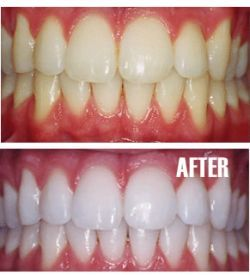 This actually works, I promise. Mix together some baking soda, hydrogen peroxide and some lemon juice. Play with amounts of baking soda and HP until you get a pasty consistency. Put it on your tooth brush and brush your teeth with it. I saw instant results. I know people have doubts but you'll never know until you try for yourself.