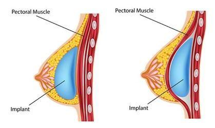 Pin On Breast Implants Delhi