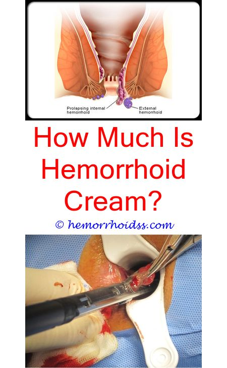 3 Natural Cool Tips: Do They Remove Hemorrhoids During A