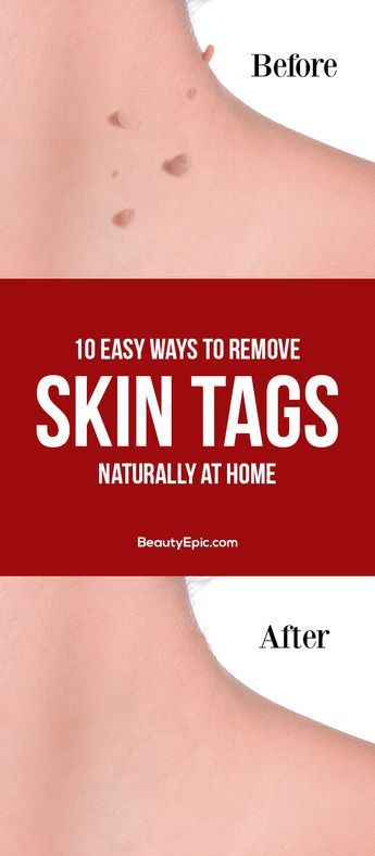 DIY Home Decor: 10 Easy Ways to Remove Skin Tags Naturally at Home...