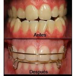 ¿ QUÉ ES LA ORTODONCIA ?  La ortodoncia es una especialidad de la Odontología cuyo objetivo es la reposición en su sitio de las piezas mal colocadas.  La ortodoncia puede mover un diente situado en una posición anormal en las arcadas dentarias hasta su posición adecuada.  También puede corregir rotaciones e inclinaciones dentarias.