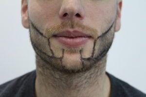 Fue Hairline Clinic Provide Beard Hair Transplantation