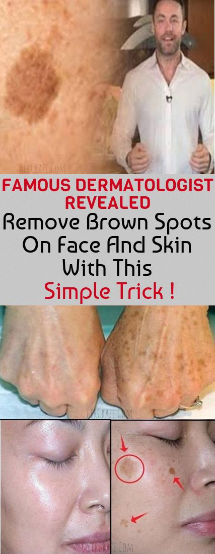 Ways to Remove Brown Spots on Face #HealthandFitness #BestWayToRemoveBrownSpots #SkinCareForBrownSpots #ReduceBrownSpotsOnFace