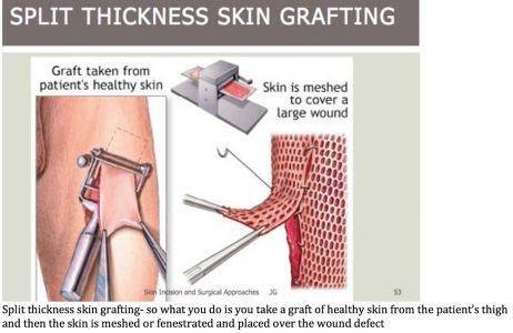 صورة ذات صلة Skin Grafting Healthy Skin Skin