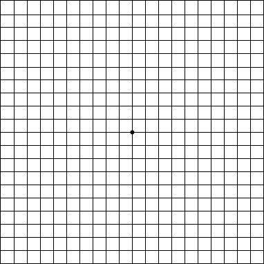 picture relating to Printable Amsler Grid named Pinterest