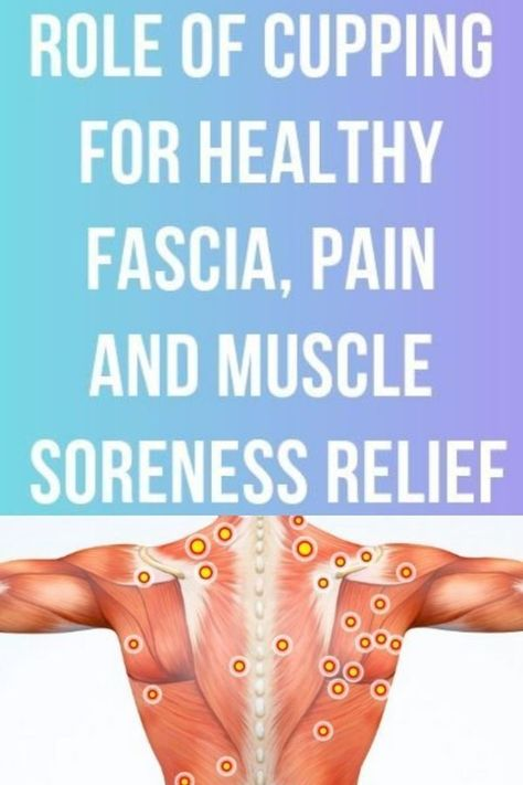 Do you struggle with muscle pain or stifness? Cupping is here to help! #cupping #fascia #cuppingtherapy #painrelief