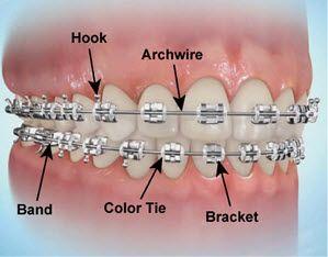 Pin On Orthodontist Miami Gardens Fl