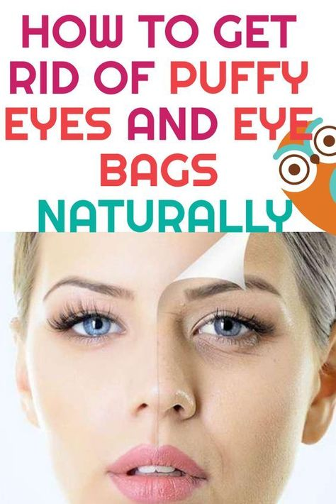 How To Get Rid Of Tired Looking Eyes Naturally