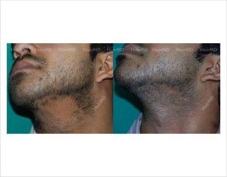 alopecia areata universal tratamiento natural