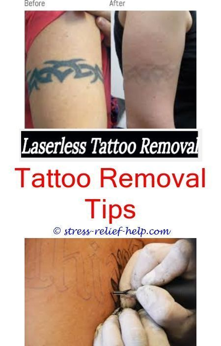 Beschle Removal Remove Speed Tattoo Can You Remove A Tattoo To Speed Up The Removal Of Accelerate Tattoo Removal Laser Tattoo Tattoo Removal Cost