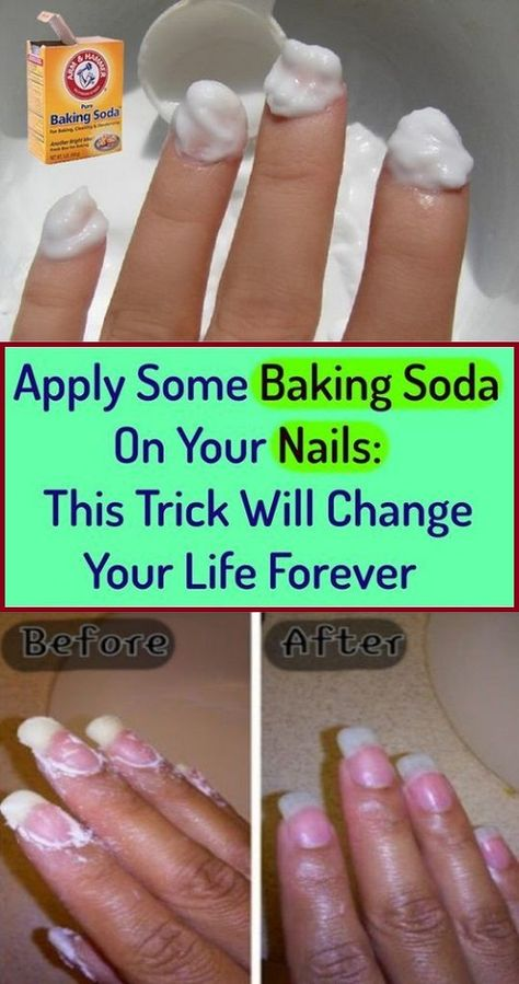 Rub Some Baking Soda On Your Nails And See What Happens: This Trick Will Change Your Life Forever -