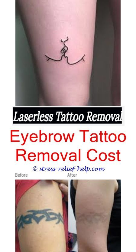 How Much Tattoo Removal Uk Tattoo Removal Bay Area Can You Remove Tattoos With Milk Tattoo Tattoo Removal Cost Picosure Tattoo Removal Eyebrow Tattoo Removal