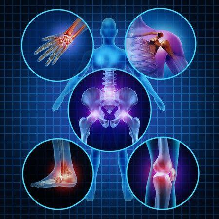 artritisz kezelése art