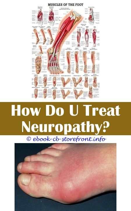 19 Phenomenal Neuropathy Symptoms Therapy Ideas