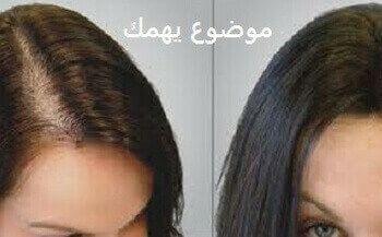 عمليات زرع الشعر للنساء بالليزر بدون جراحة موضوع يهمك Fashion Pearls Earrings