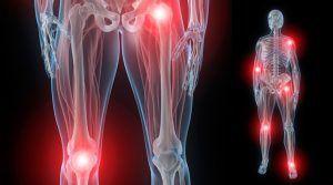 Para Que Sirve El Deflazacort Usos Beneficios Y Propiedades Antiinflamatorios Naturales Artritis Fibromialgia