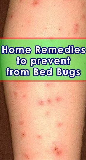 Bed Bug Bites Home Remedies And Prevention Getinfopedia Com Bed Bug Bites Bed Bug Bites Remedies Bug Bites Remedies
