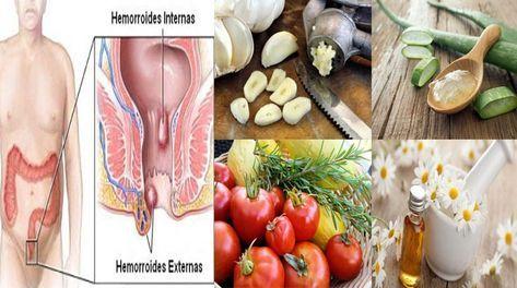 Remedio Natural Para Las Hemorroides Inflamadas
