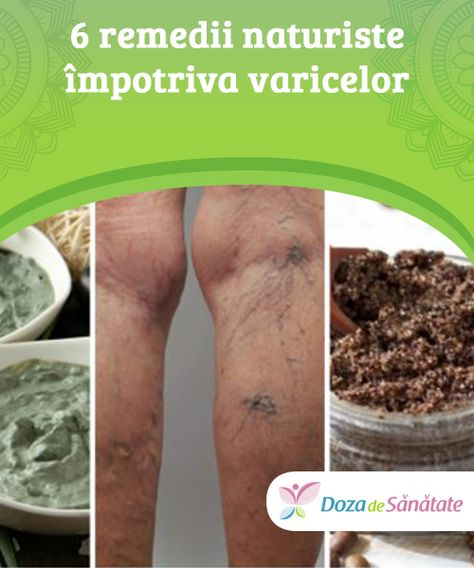 remedii populare din tratamentul varicozei