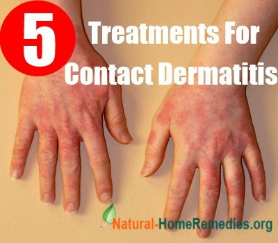 5 Best Treatments For Contact Dermatitis