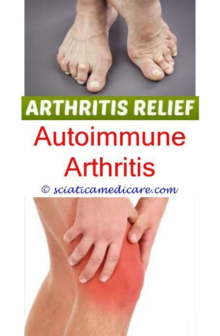 Icd 10 Code For Gouty Arthritis - slidesharedocs
