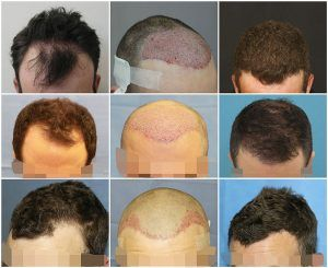 Hair Growth Center Is The Best Hair Restoration And Hair Transplant Clinics In London Uk Our Expert Hair Transplant Cost Hair Transplant Best Hair Transplant