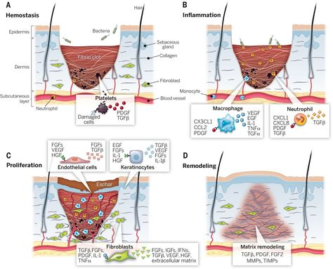 stages of wound healing photos - Google Search | Books & School