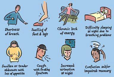 Symptoms of Congestive Heart Failure   Rehabilitate Your Heart