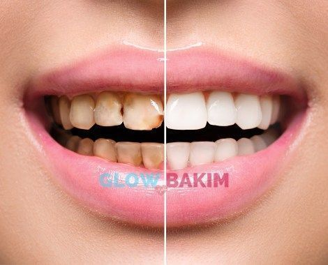 Pin On Teeth Whitening Products Tips