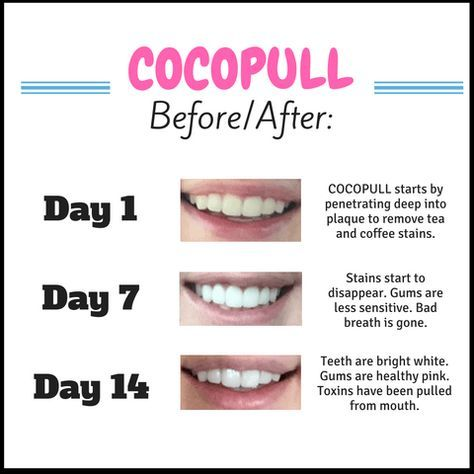 Verwonderend Cocopull™ Oil Pulling for White Teeth, Fresh Breath and Healthy WO-79