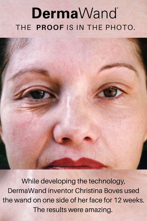 DermaWand Pro Anti-Aging Device