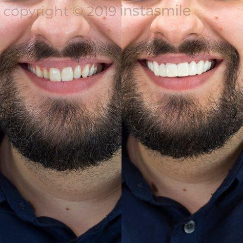 Instasmile Platinum Top Set Veneers In Shade A1 Celebrity Smiles Straight Smile Perfect Teeth