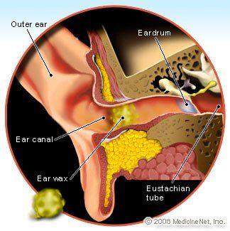 Ear Crackling Ear Wax Removal Ear Wax Ear Wax Buildup