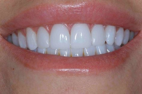 Reducing unsightly cracked and worn four front teeth was the goal of this patient. See the amazing before and afters done by Ericson Dental then call to schedule your next appointment 884 Teeth Whiting At Home, Veneers Teeth, Beautiful Teeth, Perfect Teeth, Dental Cosmetics, Front Teeth, Natural Teeth Whitening, Whitening Kit, Teeth Braces
