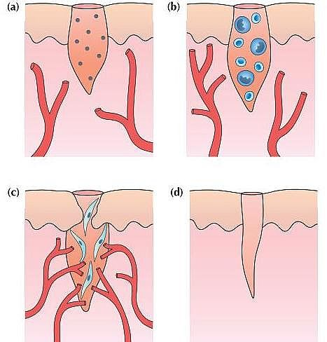 Wound Healing Process Stages Types And Wounds Classification With Their Complications Jotscroll Wound Healing Healing Process Tissue Types