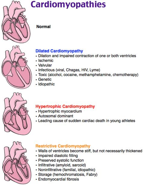 Types of Cardiomyopathy