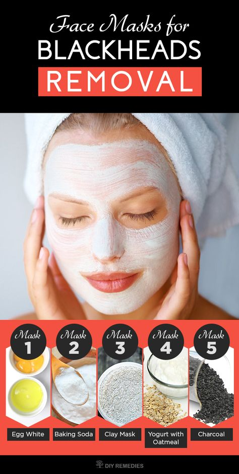 5 Best Face Masks For Blackheads Removal Blackheads Occurs