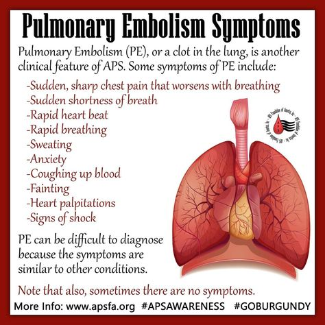 Athletes And Those That Exercise Regularly Who Exhibit Symptoms Of Pulmonary Embolism PE May Be Completely Overlooked By Healt
