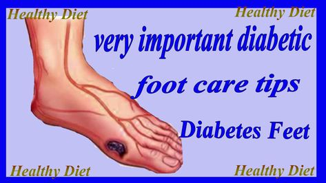 Very Important Diabetic Foot Care Tips In English Feet Care