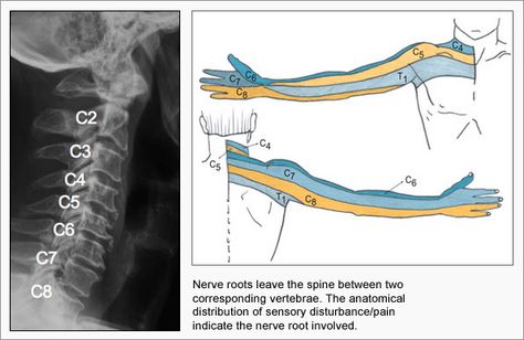 cervical c6 and c7 disk degeneration | C2 - Posterior occipital headaches, temporalpain