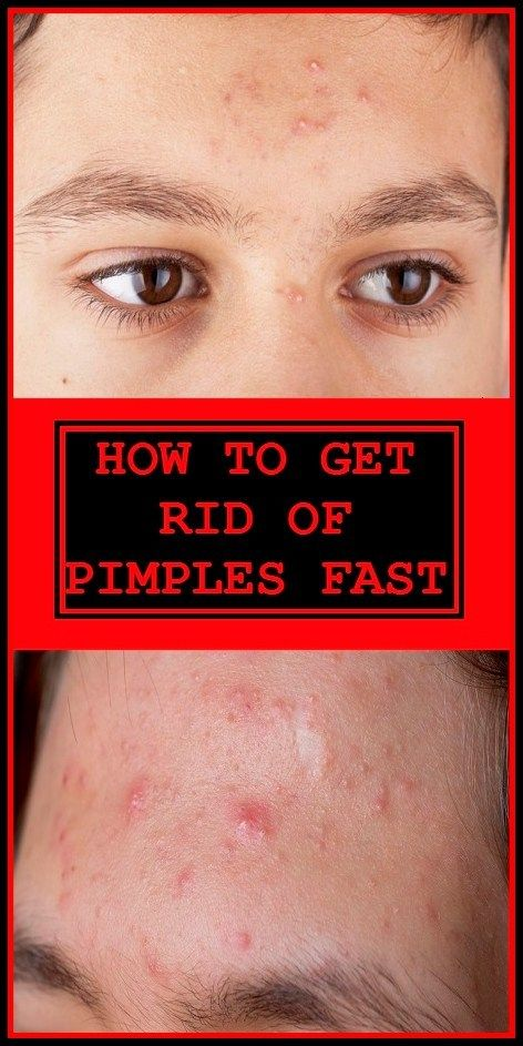 How To Get Rid Of A Sore Pimple Fast