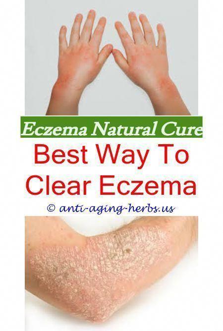 Dry Skin Disease Eczema Tacrolimus Ointment Eczema Eczema And