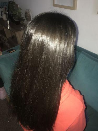 Saca Toda La Caspa Y Grasa Cuidando El Cuero Cabelludo Especial Para La Etapa Adolescente Paulina B Shampoo Anticaspa Cabello Graso Caspa