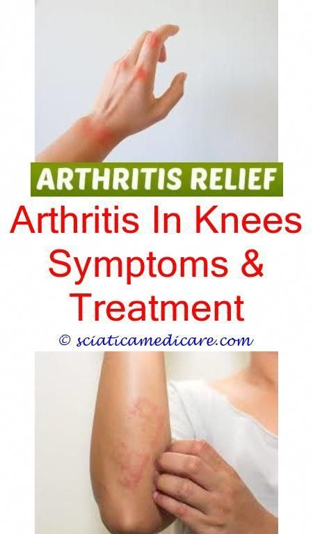Best Medication For Arthritis In Knees How Do You Check For