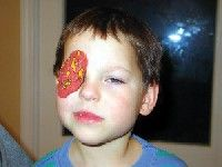 """Treatment Options for Non-Refractive Conditions. """"In this second installment of """"Pediatric Practice,"""" we will discuss how the primary-care optometrist can manage five conditions common in school-aged children."""" I believe occlusion therapy (patching, atropine, fogging lens) is still useful in early amblyopia treatment, but you must also integrate binocular therapies and include vestibular work in order to achieve true 3D vision (stereopsis or binocular vision)."""