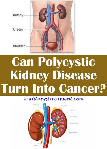 Renal Diet Desserts Polycystic Kidney Disease Kidney Disease Diet Kidney Disease